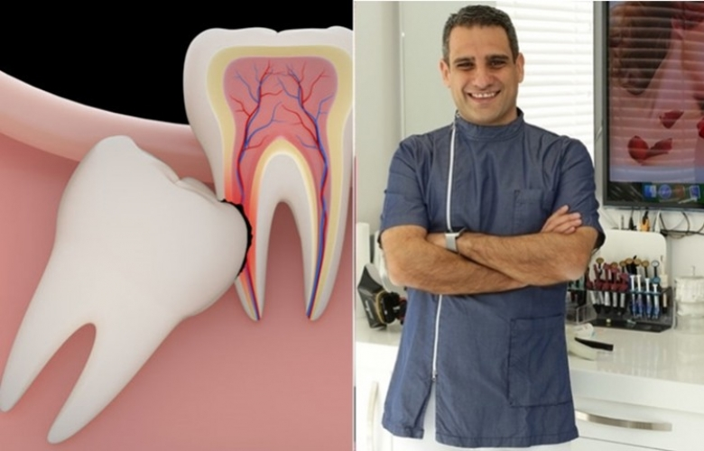 Diş Doktoru İlker Arslan A'dan Z'ye kadar 20 yaş dişini yazdı! Nedir bu 20 yaş dişi?