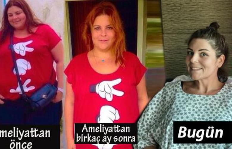 22 ayda 90 kilo veren Pelin Öztekin yeniden ameliyat oldu!