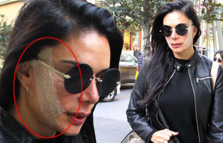 Kim Kardashian'a benzemek için ameliyat oldu. Kendisini göstermek için Nişantaşı'nda yürüyüşe çıktı!