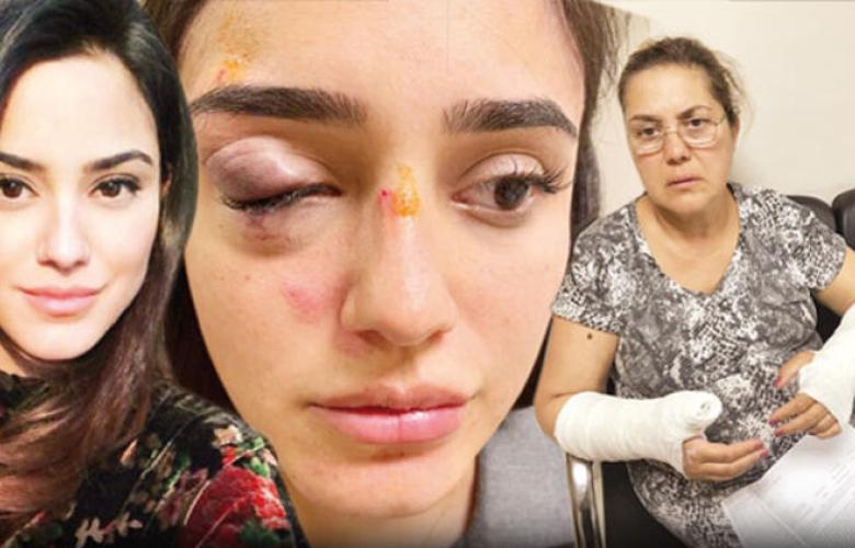 Sevgilisi ünlü manken Ceren Kaplakarslan ve annesine dehşeti yaşattı! Kan donduran detaylar....