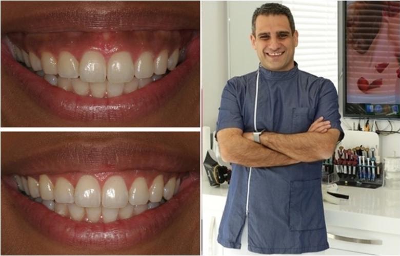 """""""Diş eti estetiği"""" nedir? Nasıl yapılır? Kimlere yapılır? Neden yapılır? Dr. İlker Arslan yazdı."""