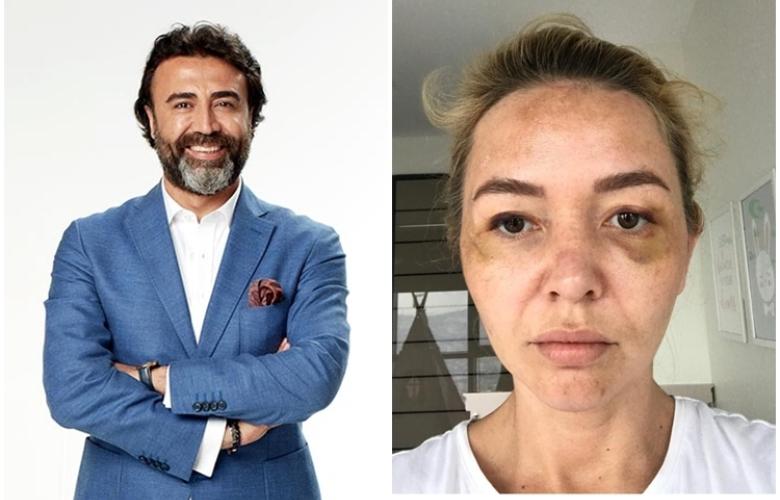 """Sosyal medya hesabından erkek vahşeti için """"Artık Susma!"""" diyen Dr. Nihat Dik'den 2 yaşındaki kızına ve sevgilisine dayak!!!  ÖZEL HABER!"""
