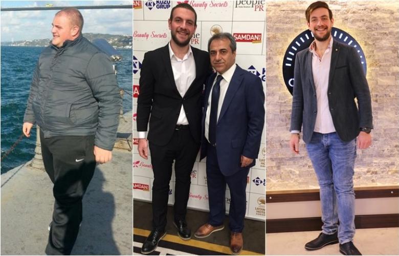 """Obezite Cerrahı Prof. Dr. Oktay Banlı: """"Zayıflama ameliyatlarıyla diyabet ve hipertansiyonu arkanızda bırakın!"""""""